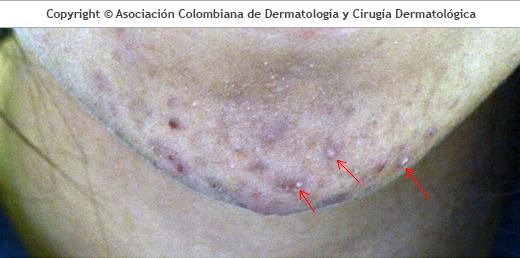 Pústulas: acné