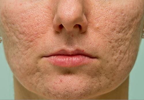 cicatrices de acné deprimidas