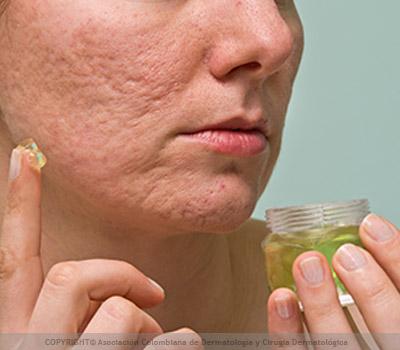 acné no se cura sin tratamiento
