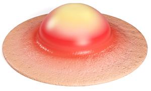 barro acne