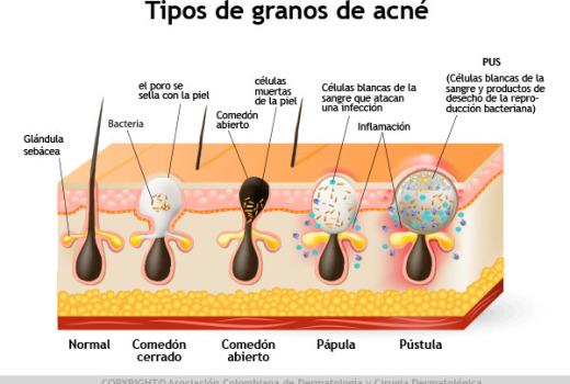 esquema granos de acné