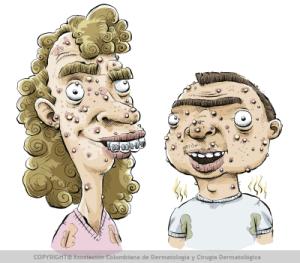 higiene y acné