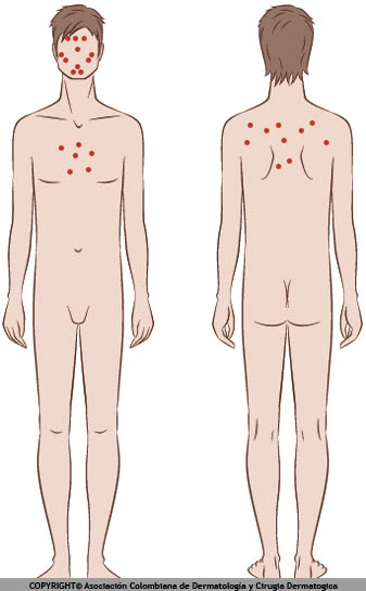 localizacion acné