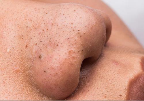 comedones abiertos acné