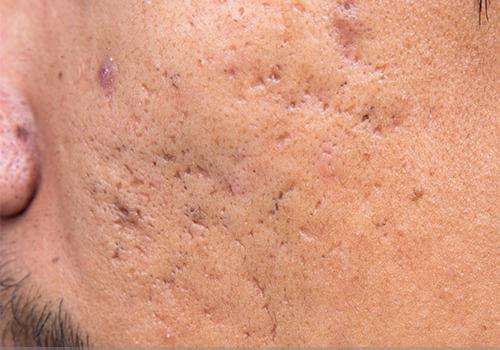 Cicatrices puntiformes